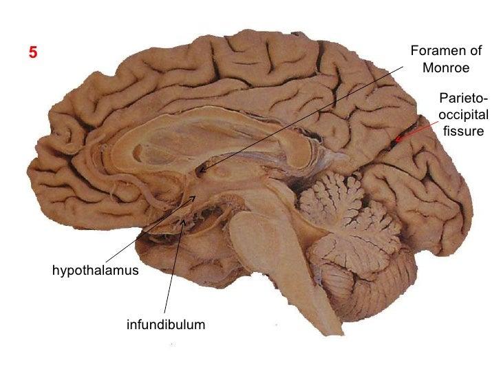 Location Of Hypothalamus In, Location, Get Free Image ...