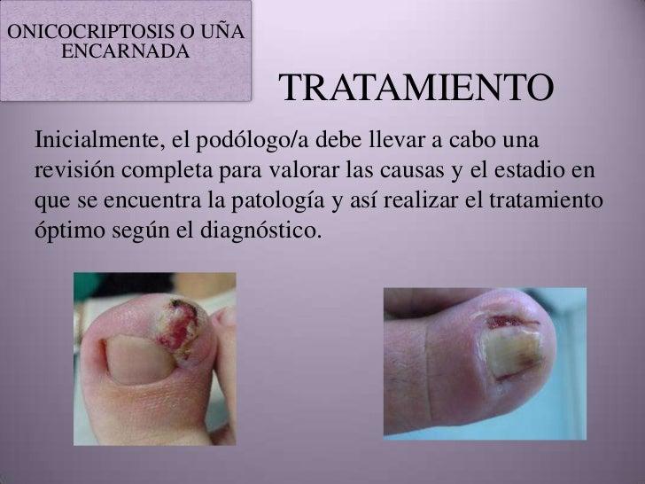 La uña rota en el pie que curar