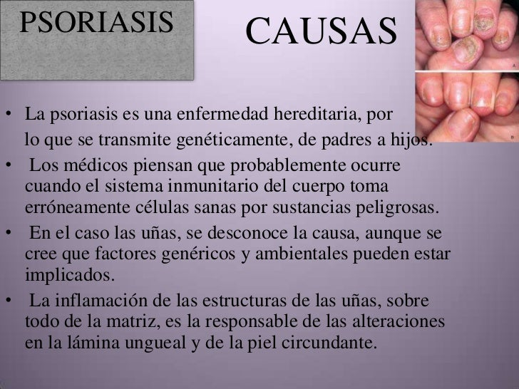La psoriasis el nuevo método del tratamiento