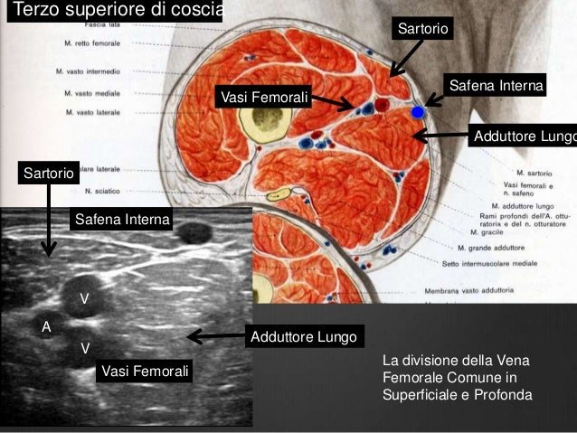 Le emorroidi croniche 2 gradi complicate da trombosi
