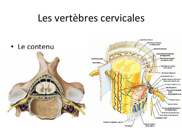 Très fort cervical osteokhondroz