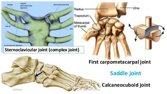 Trigger thumb anatomy