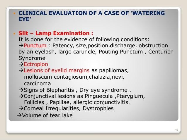 anatomy of lacrimal apparatus pdf