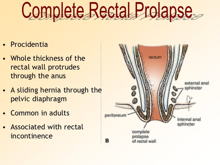 Anatomy of rectal area