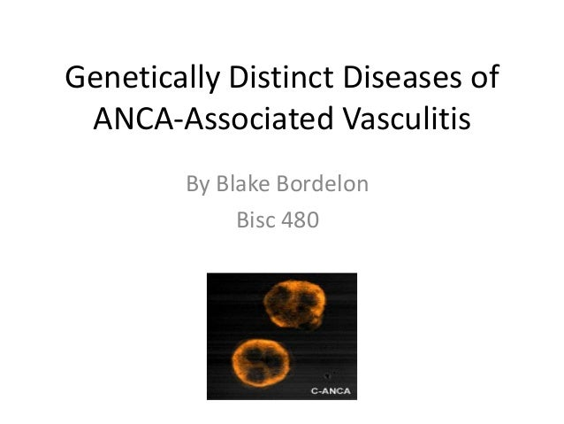 Genetically Distinct Diseases of ANCA-Associated Vasculitis By Blake Bordelon Bisc 480