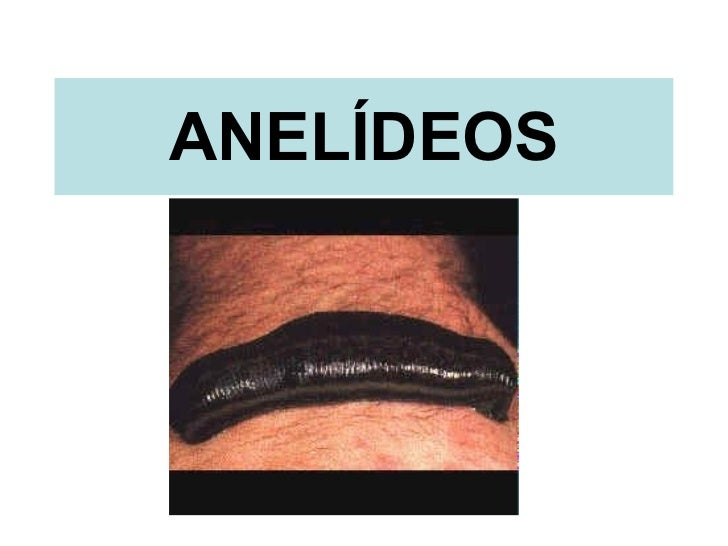 Anelideos