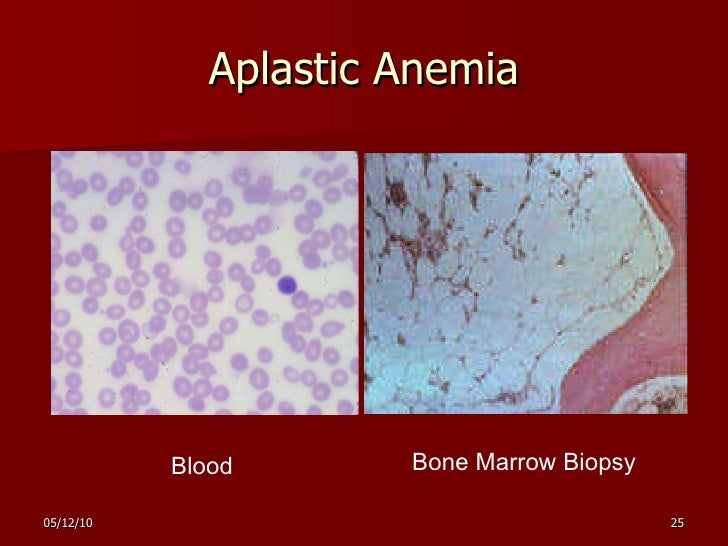 aplastic anemia a rare blood disorder Is a rare disease, with about 600 to 900 new diagnoses each year in the us (2  to 3  is there a family history of aplastic anemia or other blood disorders.