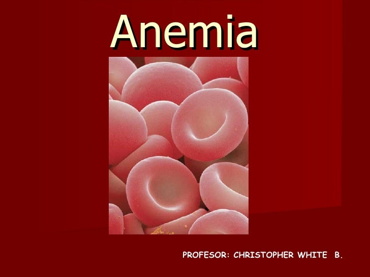 Anemia PROFESOR: CHRISTOPHER WHITE  B.