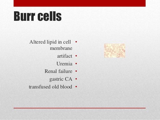 Helmet Cells And Schistocytes Schistocyte/helmet Cells