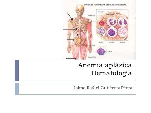 Anemia aplásica     HematologíaJaime Rafael Gutiérrez Pérez