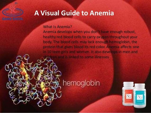 Anemia a visual guide to anemia