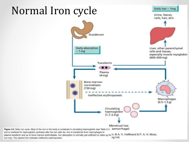 Anemia of Inflammation and Chronic Disease