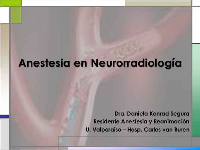 Anestesia en Neurorradiología Dra. Daniela Konrad Segura Residente Anestesia y Reanimación U. Valparaíso – Hosp. Carlos va...