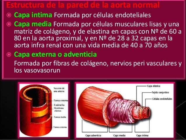 Infra abdominal aorta