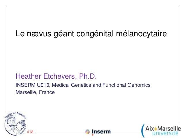 Le nævus géant congénital mélanocytaire     Heather Etchevers, Ph.D.     INSERM U910, Medical Genetics and Functional Geno...