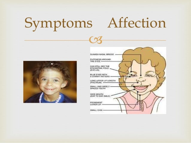 Angelman Syndrome.