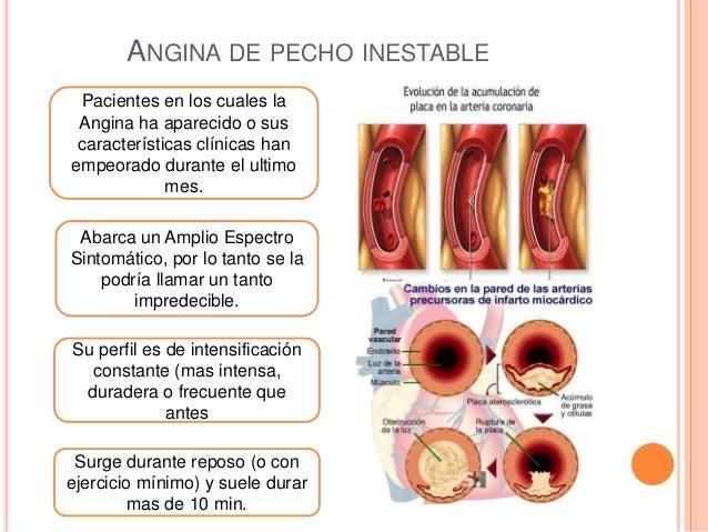 Angina De Pecho