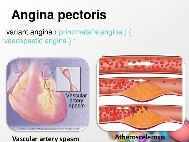 klachten angina pectoris