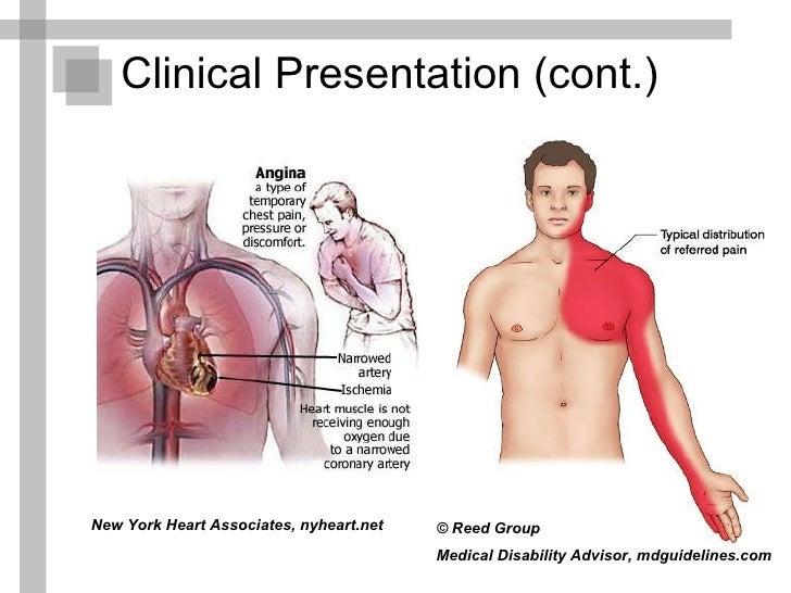 angina pectoris in women