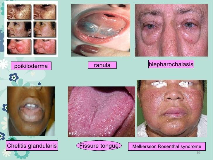 Melkersson Rosenthal Melkersson Rosenthal Syndrome