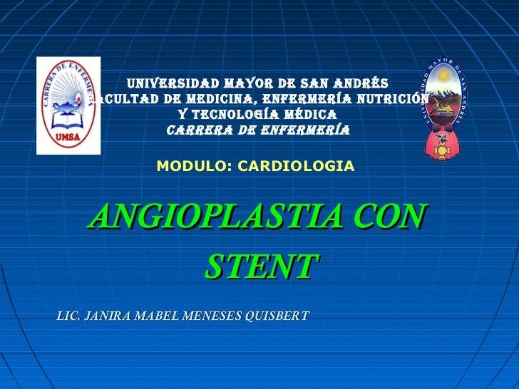 Angiografia con stent