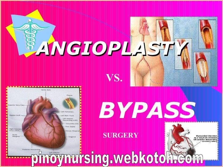 ANGIOPLASTY   VS. BYPASS SURGERY pinoynursing.webkotoh.com