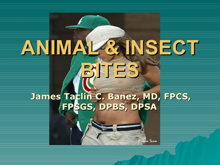 Animal And Insect Bites