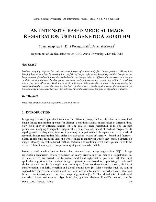 An intensity based medical image registration using genetic algorithm