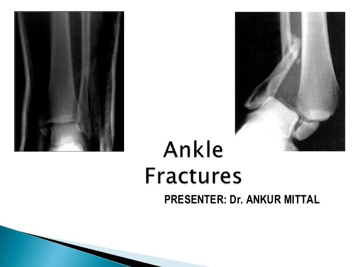Ankle fractures final