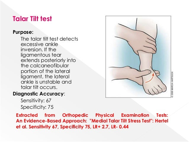Exame tilt test