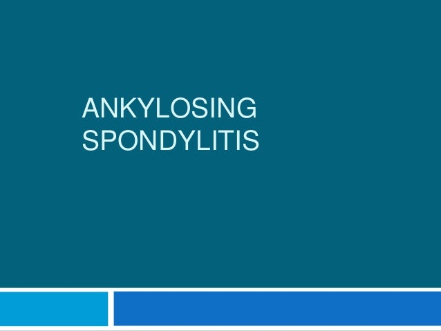 Ankylosing spondylitis clinical feature and diagnosis