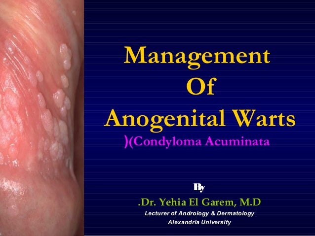 Management Of Anogenital Warts ((Condyloma Acuminata B y .Dr. Yehia El Garem, M.D Lecturer of Andrology & Dermatology Alex...