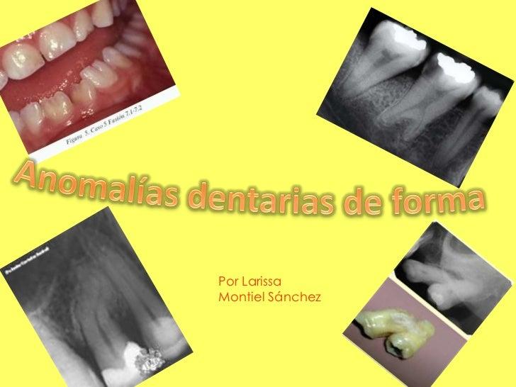 Por LarissaMontiel Sánchez