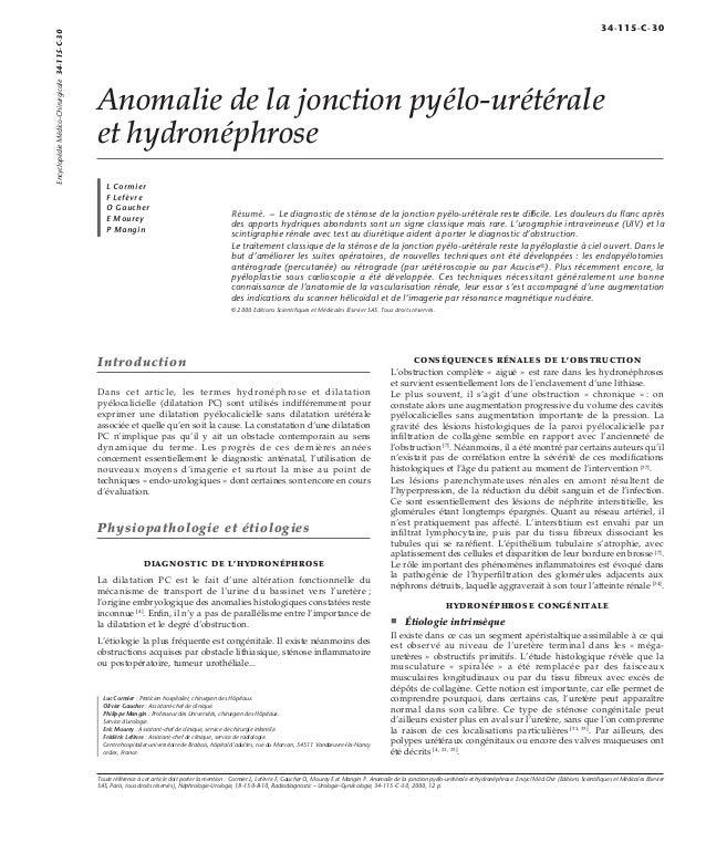 Anomalie de la jonction pyélo-urétérale  et hydronéphrose  L Cormier  F Lefèvre  O Gaucher  E Mourey  P Mangin  Résumé. – ...