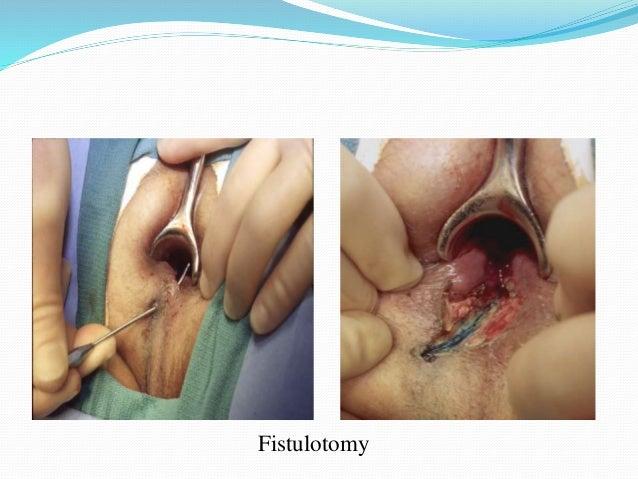 Complications of anal fistula