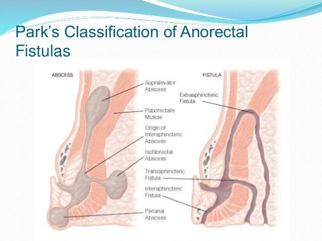 Anorectal abscess - Wikipedia