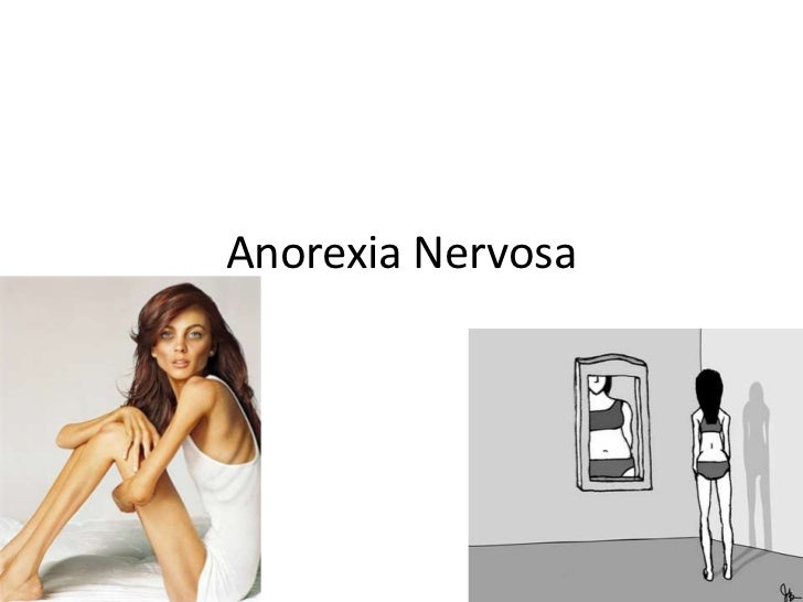 Anorexia Nervosa<br />