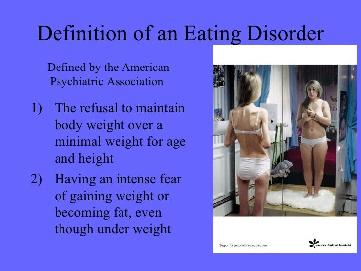 a research on the eating disorder anorexia nervosa Anorexia nervosa can affect many different populations including women and  men,  treatment for patients interested and eligible in the ongoing research  studies day treatment is available at columbia university's eating disorders  program.