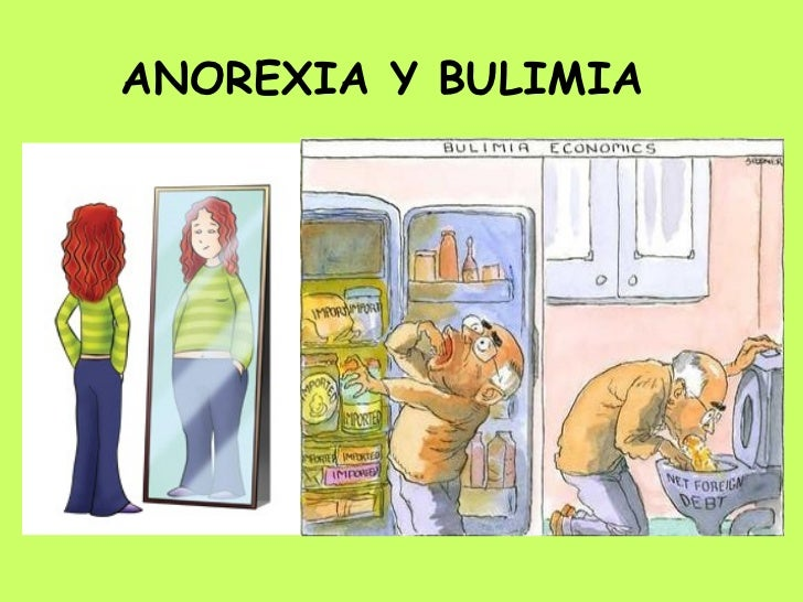 anorexia and bulimia 1 Additional hormone changes of the eating disorders are summarized in table 1  low leptin levels have been reported (10, 11) leptin is a small anorexigenic.