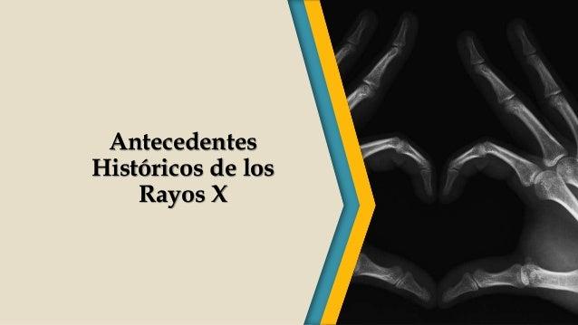 Antecedentes Históricos de los Rayos X