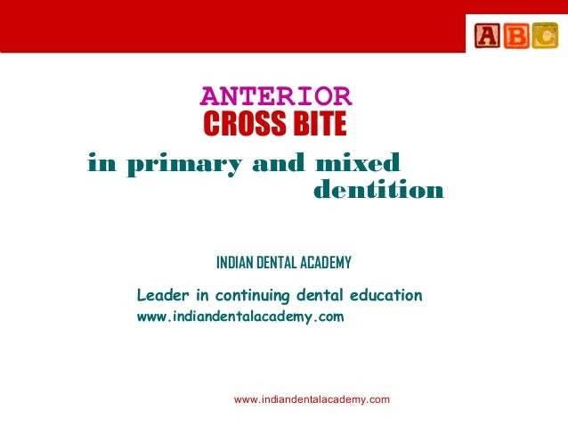 ANTERIOR CROSS BITE in primary and mixed dentition INDIAN DENTAL ACADEMY Leader in continuing dental education www.indiand...