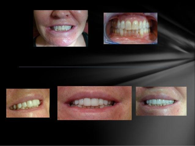 Clínica Doctores López - Estética Dental y Odontología. Antes y después