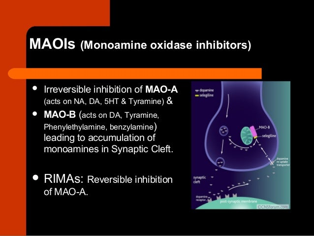 tramadol for migraine prophylaxis