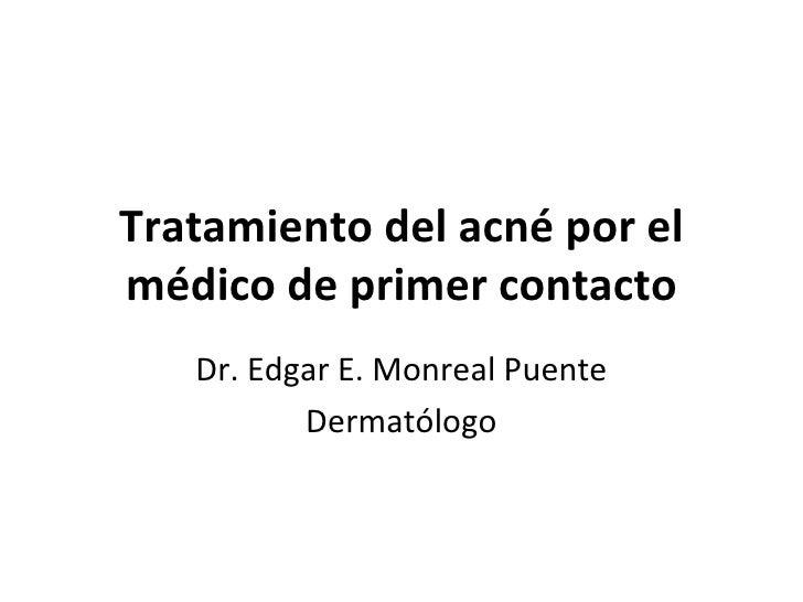 Tratamiento del acné por el médico de primer contacto Dr. Edgar E. Monreal Puente Dermatólogo