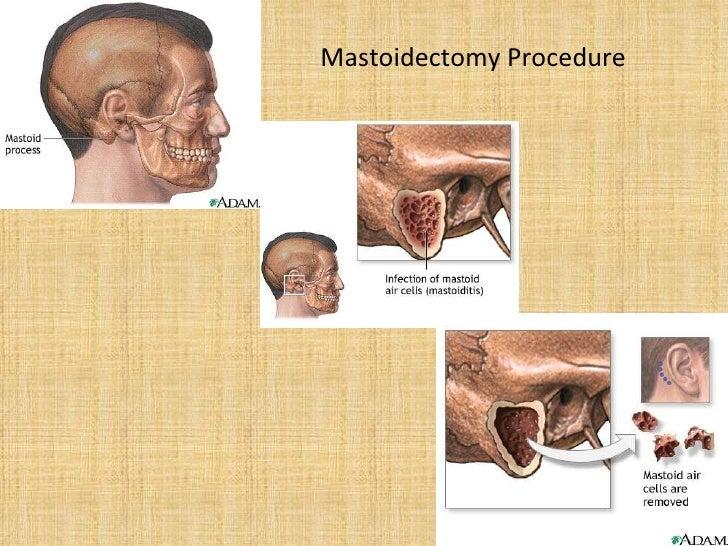 Cholesteatoma Removal