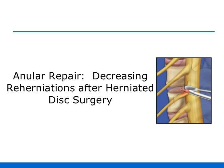 Anular Repair:  Decreasing Reherniations after Herniated Disc Surgery<br />