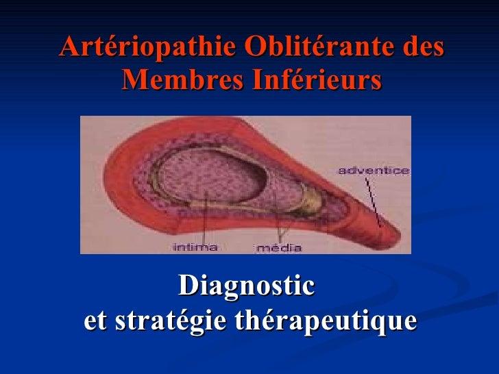 Artériopathie Oblitérante des Membres Inférieurs Diagnostic  et stratégie thérapeutique