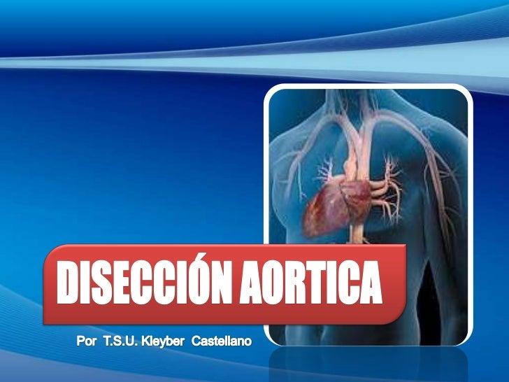 Disección Aortica