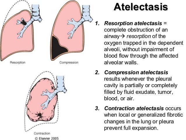 related keywords & suggestions for lung atelectasis meaning, Cephalic Vein