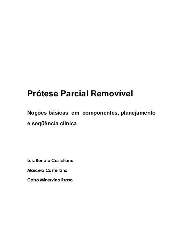 Prótese Parcial Removível Noções básicas em componentes, planejamento e seqüência clínica Luiz Renato Castellano Marcelo C...
